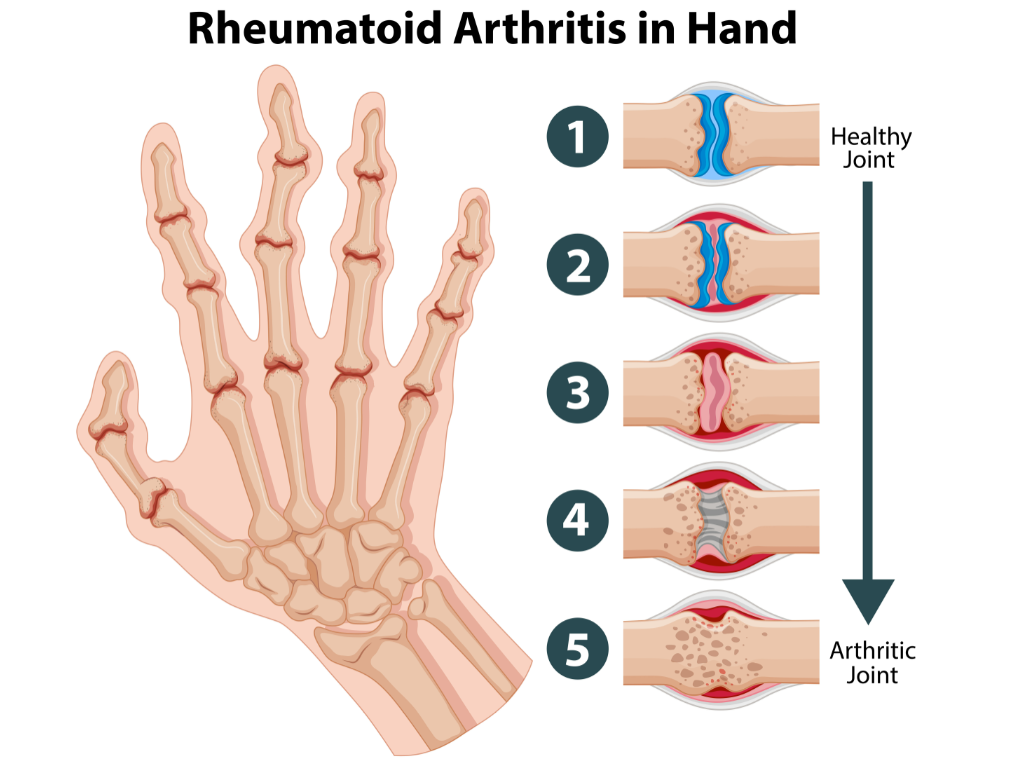 Arthritis and Sports – Natural Pain Relief Tips and Treatments